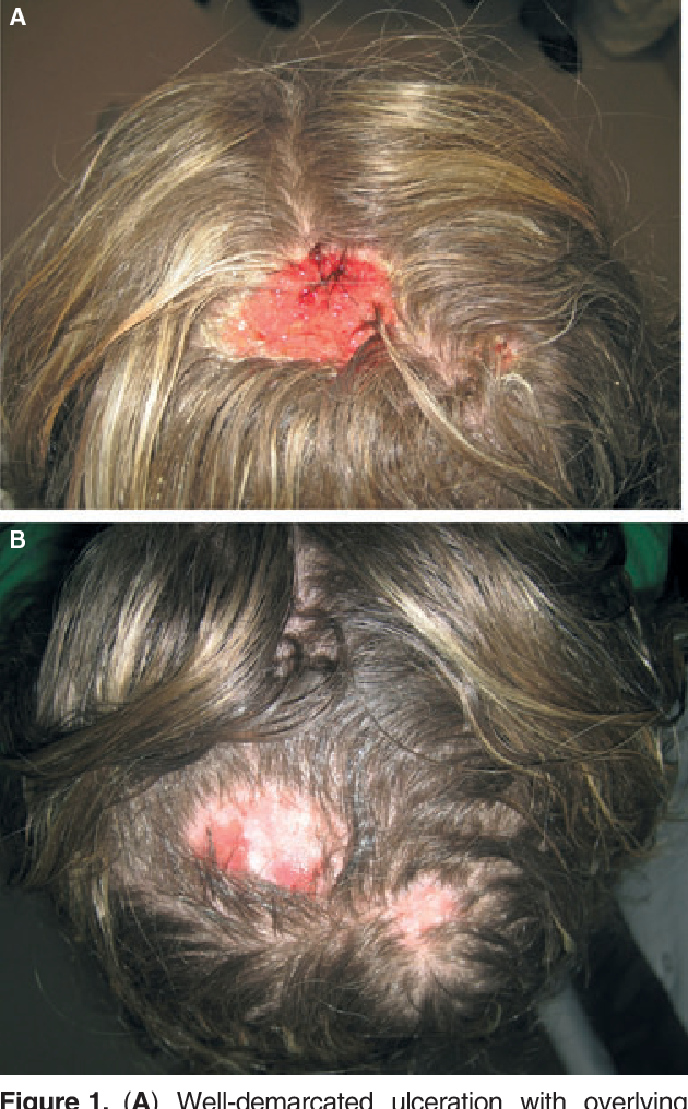 Chemical Scalp Burns Secondary To The Hair Highlighting Process