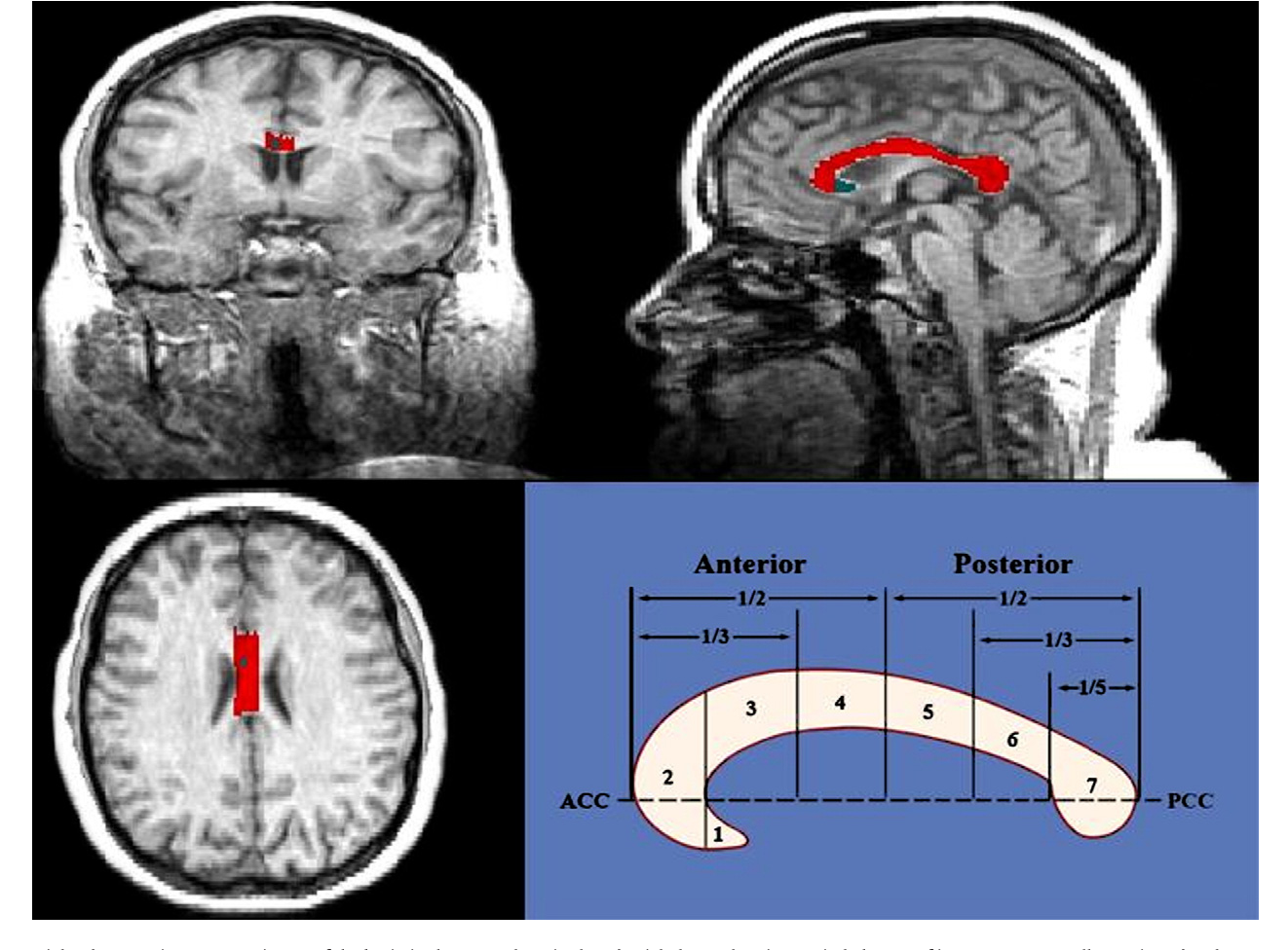 Figure 1 from Differences in corpus callosum volume and diffusivity ...