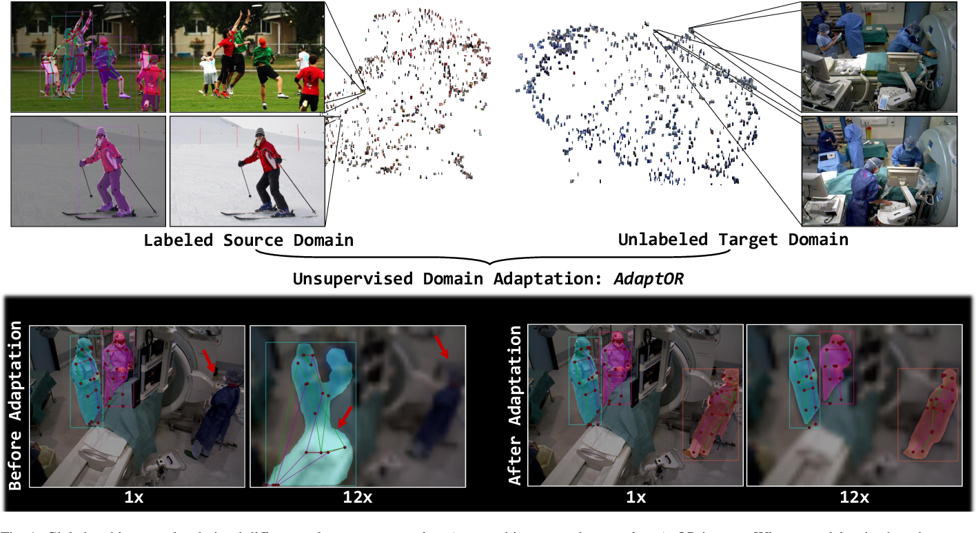 Figure 1 for Unsupervised domain adaptation for clinician pose estimation and instance segmentation in the OR
