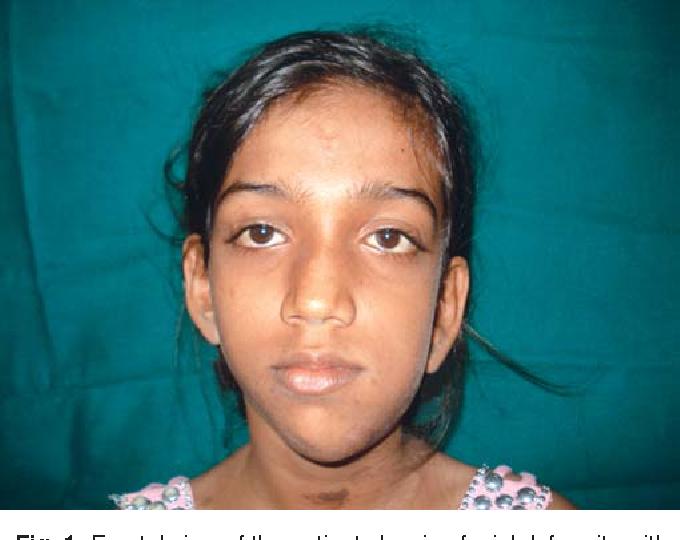 Types of facial deformity