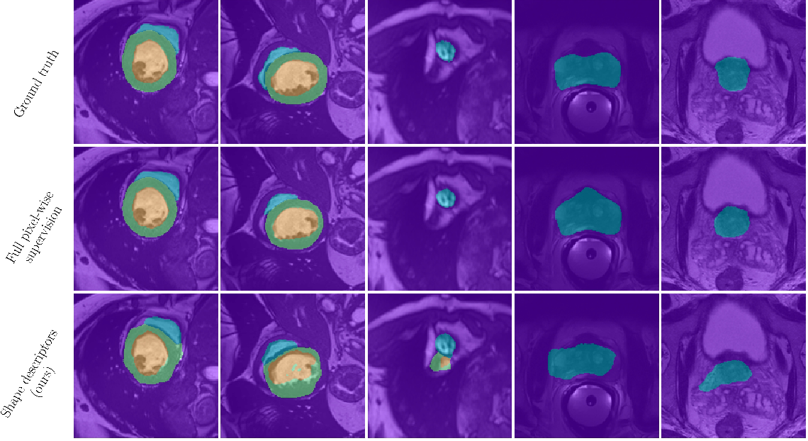 Figure 3 for Beyond pixel-wise supervision for segmentation: A few global shape descriptors might be surprisingly good!