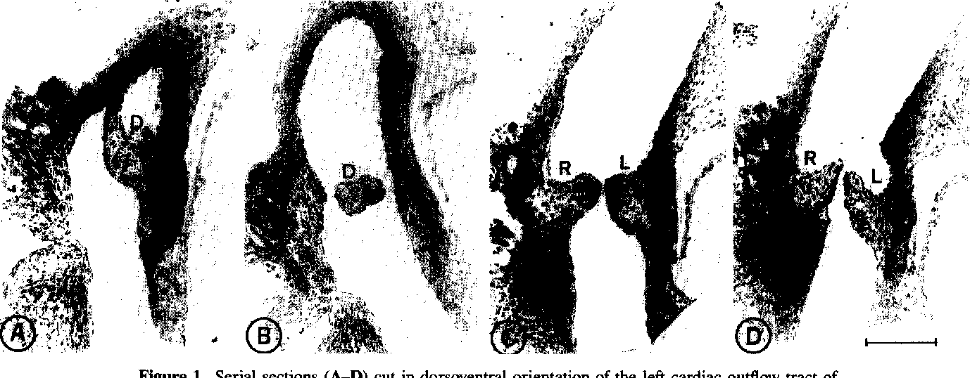 Figure 1 from Embryological evidence for the formation of a