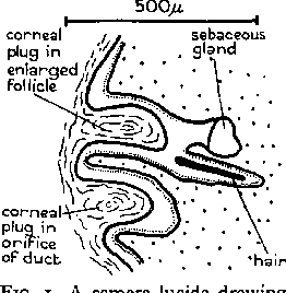 FIG. 1. A camera lucida drawing of a vertical section through an enlarged hair follicle (above) and the orifice of a mammary duct (below). The hair is degenerating and has lost its root. The extent of the epidermal basal layer of columnar cells is indicated by short strokes vertical to the surface.