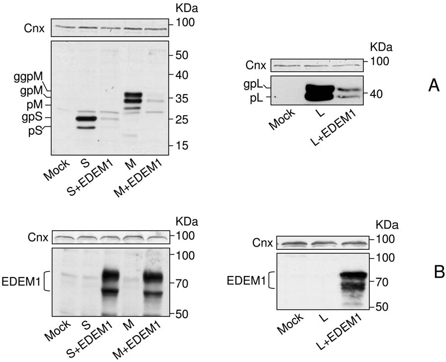 Figure 2. EDEM1 over-expression results in degradation of the HBV envelope proteins. HEK293T were transfected with pCiS, pCiM or pCiL, in the presence or absence of pCMVEDEM1. Controls (mock-transfected) cells were also included. Cell lysates were split in two and equal amounts of proteins were subjected to SDS-PAGE under reducing conditions, followed by Western blotting with anti-S (A) or anti-EDEM1 (B) Abs. Calnexin (Cnx) expression was used a total protein, gel loading control. doi:10.1371/journal.pone.0034169.g002