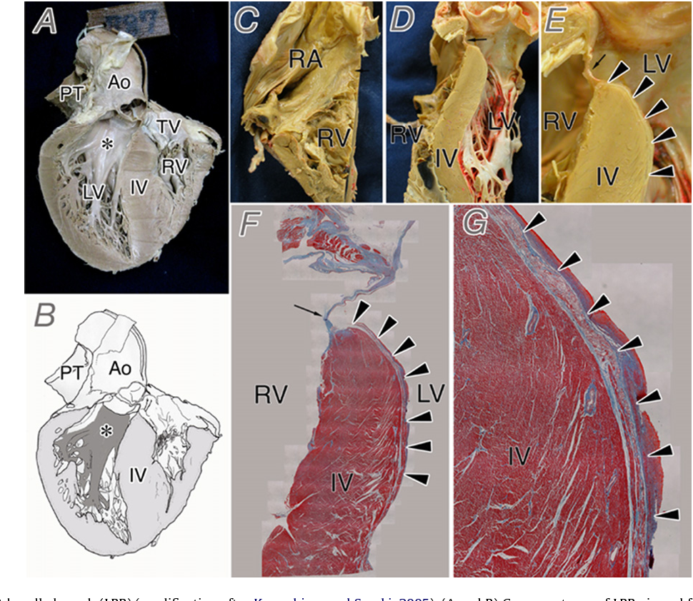 Gross anatomy of the human cardiac conduction system with ...