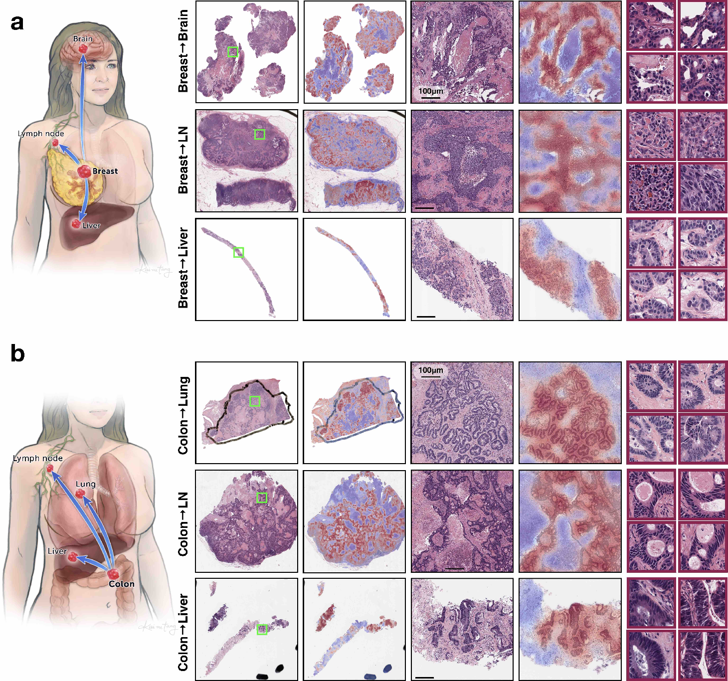 Figure 4 for Deep Learning-based Computational Pathology Predicts Origins for Cancers of Unknown Primary