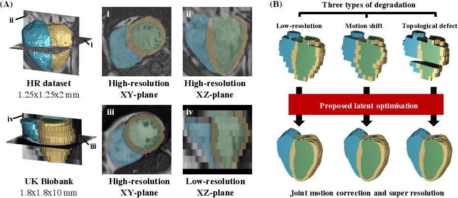 Figure 1 for Joint Motion Correction and Super Resolution for Cardiac Segmentation via Latent Optimisation