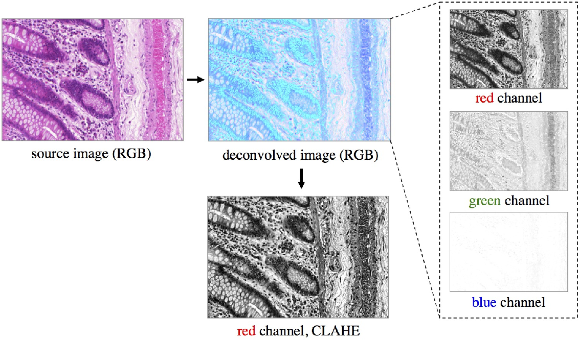Figure 3 for Semantic Segmentation of Colon Glands with Deep Convolutional Neural Networks and Total Variation Segmentation