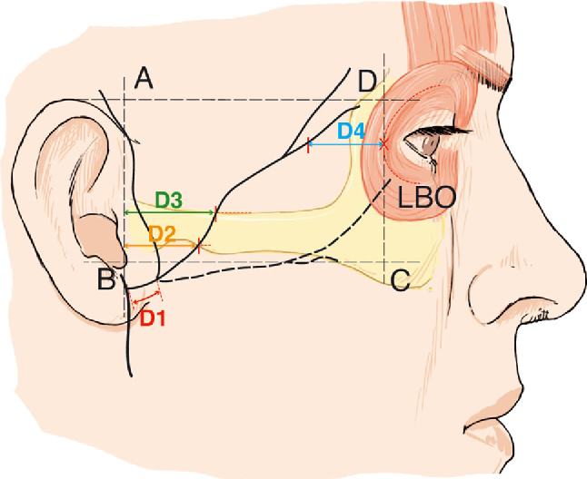 The Frontal Branch Of The Facial Nerve Can We Define A Safety Zone