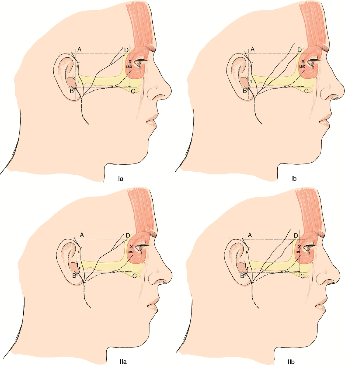 The frontal branch of the facial nerve: can we define a safety zone ...