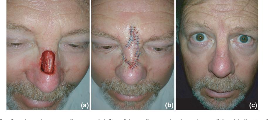 Midline facial defect