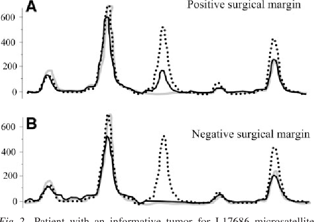 Fig. 2 Patient with an informative tumor for L17686 microsatellite instability marker and with a positive surgical margin (solid line pattern of margin DNA is the same as the dotted line pattern of tumor DNA) and with a negative surgical margin (solid line pattern of margin DNA is the same as the grey line pattern of lymphocyte DNA). Grey line, lymphocyte; dotted line, tumor; solid line, surgical margin. (Black and white figure redrawn from the original.)