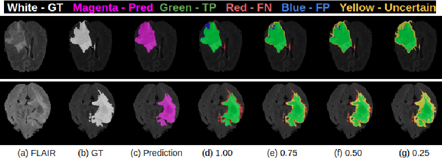 Figure 1 for Uncertainty Evaluation Metric for Brain Tumour Segmentation