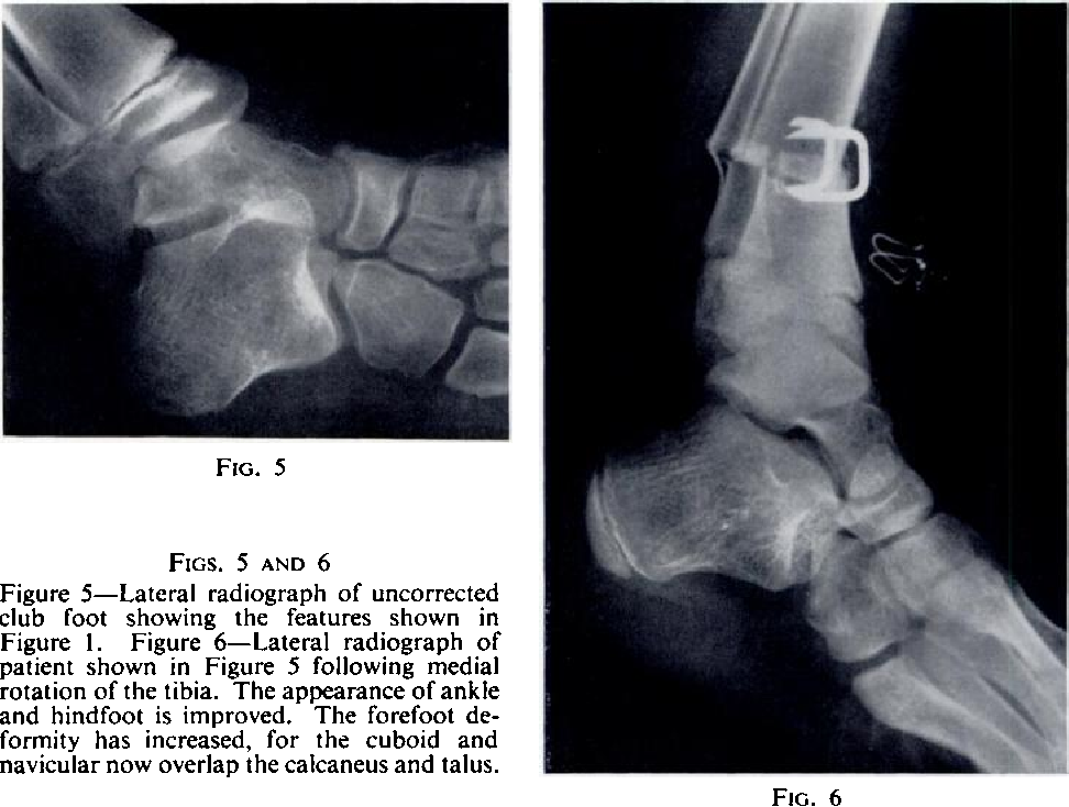 Figure 1 from The anatomy of uncorrected club feet. A study of ...