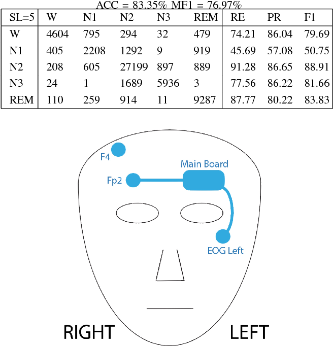 Figure 4 for Mixed Neural Network Approach for Temporal Sleep Stage Classification