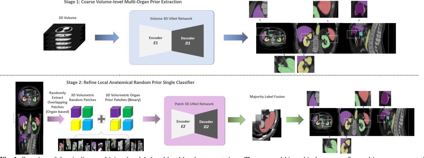 Figure 1 for RAP-Net: Coarse-to-Fine Multi-Organ Segmentation with Single Random Anatomical Prior