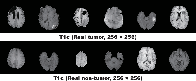 Figure 3 for Combining Noise-to-Image and Image-to-Image GANs: Brain MR Image Augmentation for Tumor Detection