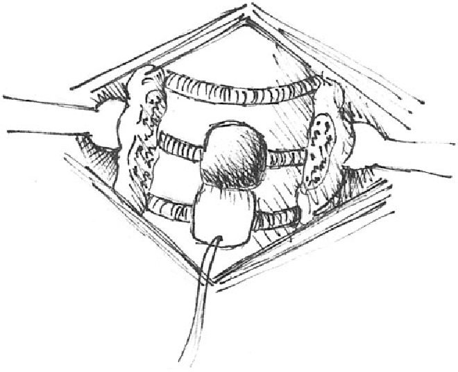 Figure 5 From Techniques For Performing Tracheostomy