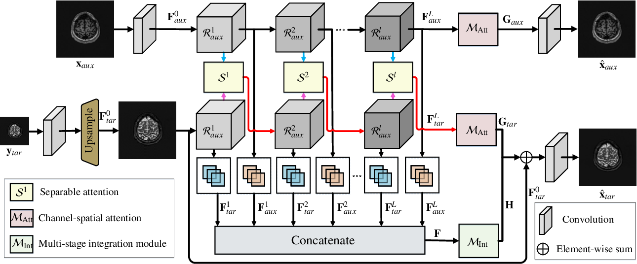 Figure 3 for Exploring Separable Attention for Multi-Contrast MR Image Super-Resolution