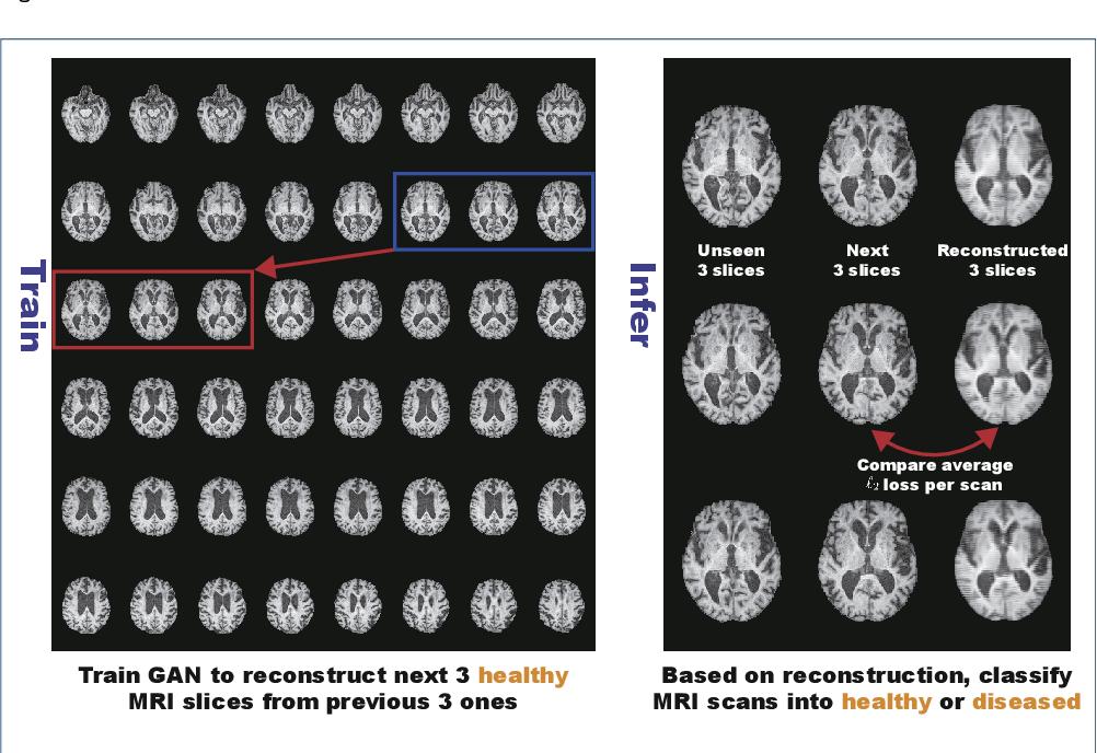 Figure 1 for MADGAN: unsupervised Medical Anomaly Detection GAN using multiple adjacent brain MRI slice reconstruction