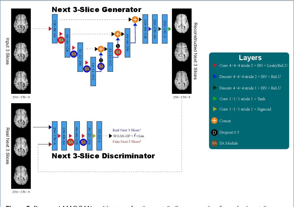 Figure 3 for MADGAN: unsupervised Medical Anomaly Detection GAN using multiple adjacent brain MRI slice reconstruction