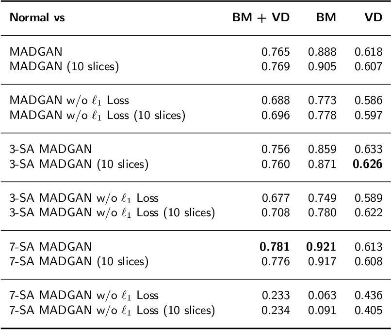 Figure 4 for MADGAN: unsupervised Medical Anomaly Detection GAN using multiple adjacent brain MRI slice reconstruction
