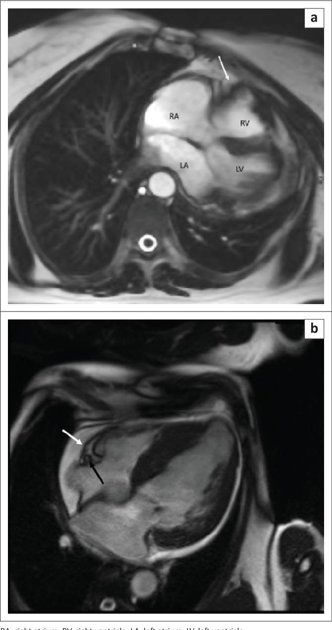 Cardiovascular MRI of the pericardium : A case review of the anatomy ...