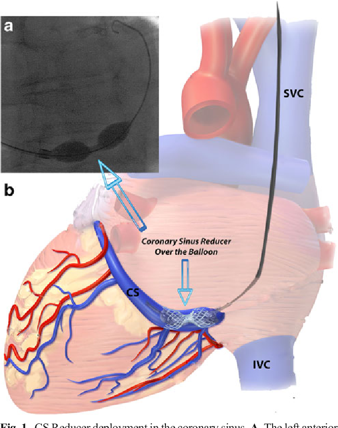 Coronary Sinus Stent: Could It Help in Refractory Chronic Stable ...