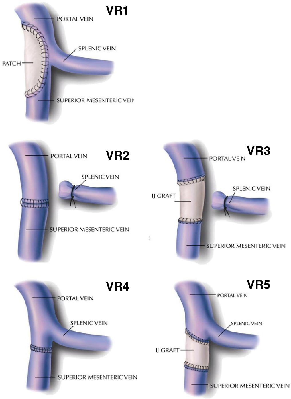 Portal Vein Anatomy Picture Images - human body anatomy