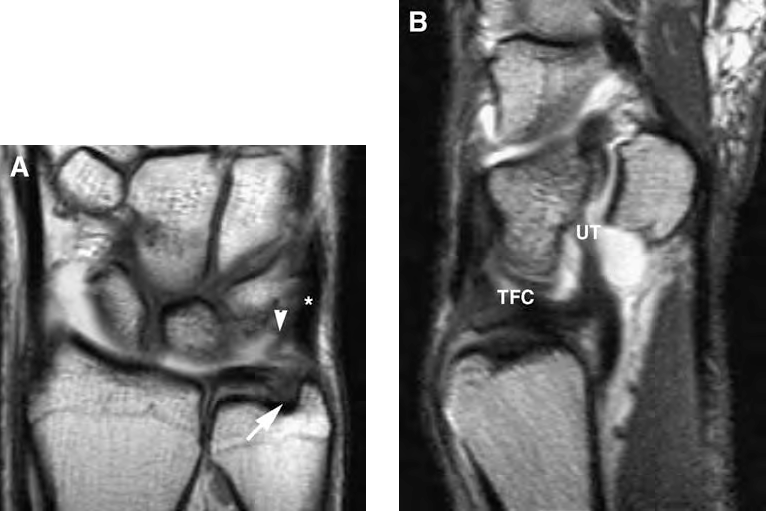 Figure 3 from Wrist MR arthrography: how, why, when. - Semantic Scholar