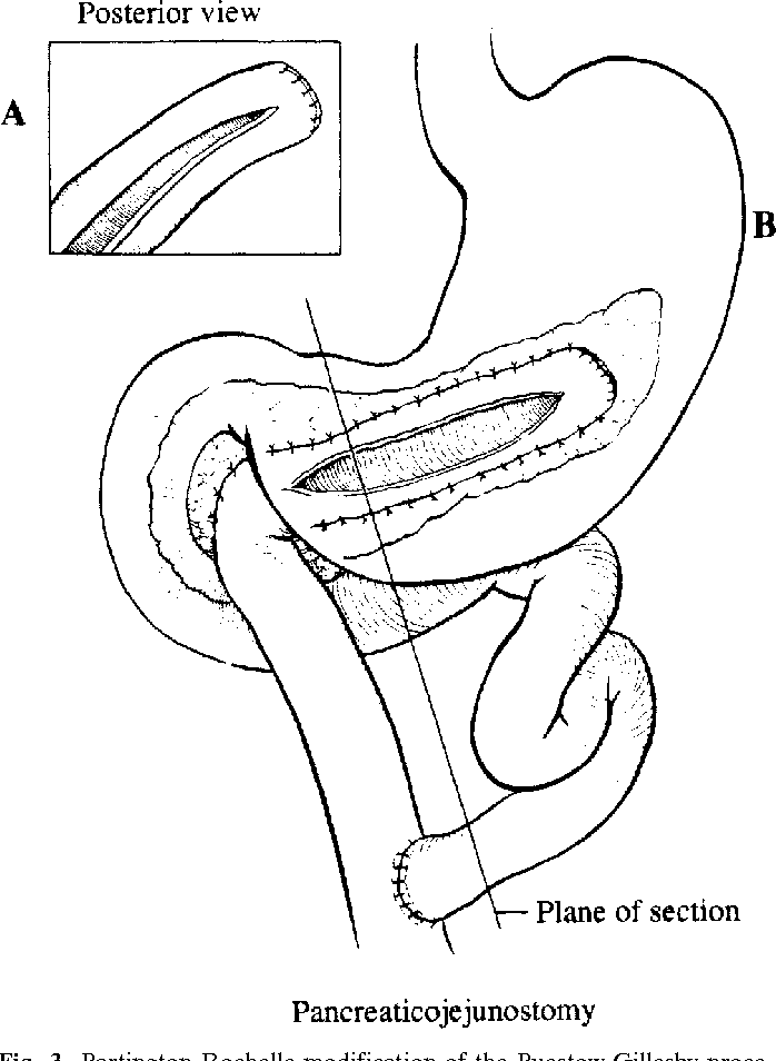 Figure 3 From Lateral Pancreaticojejunostomy For Chronic