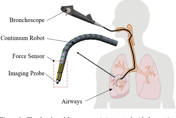 Figure 1 for FBG-Based Triaxial Force Sensor Integrated with an Eccentrically Configured Imaging Probe for Endoluminal Optical Biopsy