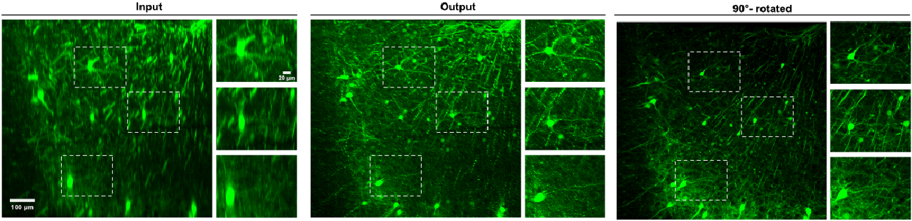 Figure 2 for Axial-to-lateral super-resolution for 3D fluorescence microscopy using unsupervised deep learning