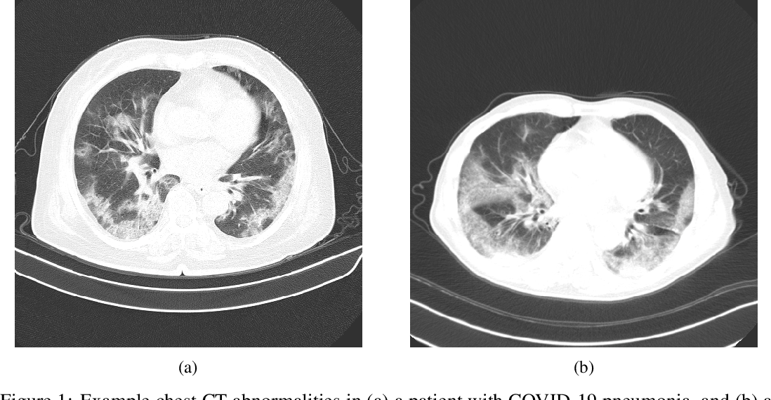Figure 1 for COVIDNet-CT: A Tailored Deep Convolutional Neural Network Design for Detection of COVID-19 Cases from Chest CT Images
