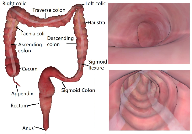 Figure 1 for Combining Deep Learning with Geometric Features for Image based Localization in the Gastrointestinal Tract