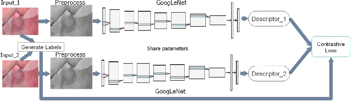 Figure 3 for Combining Deep Learning with Geometric Features for Image based Localization in the Gastrointestinal Tract