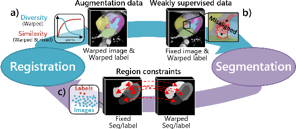 Figure 1 for Deep Complementary Joint Model for Complex Scene Registration and Few-shot Segmentation on Medical Images