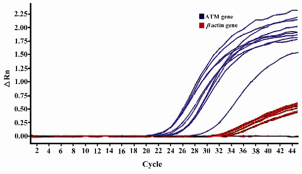 Figure 2. Amplification plot of some tumor and control samples