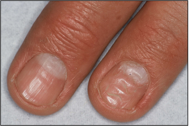 Figure 3 from [How to diagnose and treat psoriasis of the nails ...