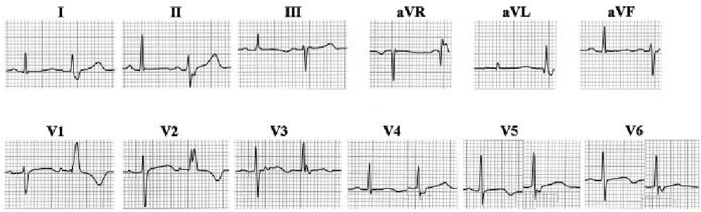 Figure 12 From Left Septal Fascicular Block Myth Or Reality