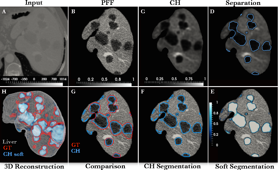 Figure 1 for Automated Unsupervised Segmentation of Liver Lesions in CT scans via Cahn-Hilliard Phase Separation