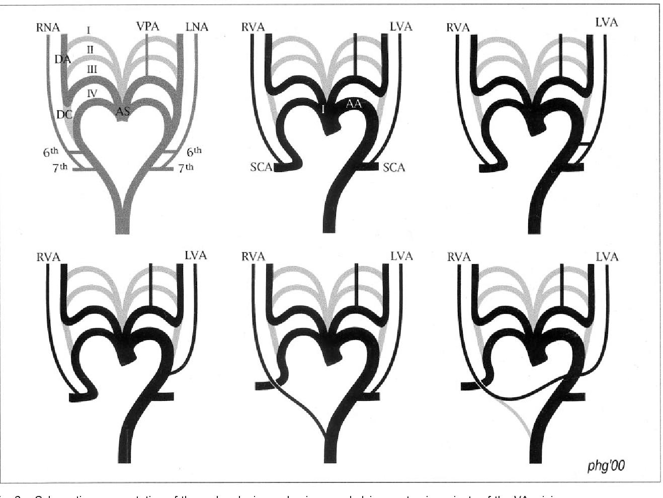 Figure 2 from Bilateral arch origin of the vertebral arteries ...