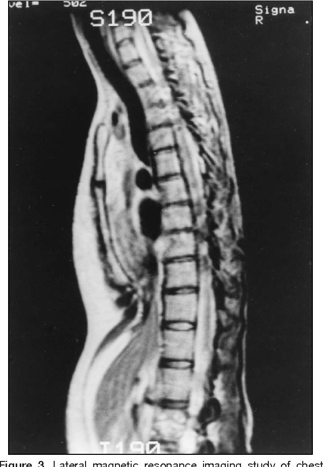 Figure 3 From Repair Of Pectus Excavatum And Carinatum In Adults