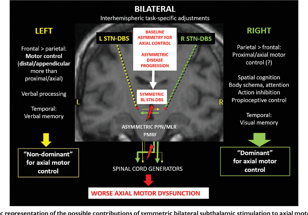 Asymmetric Neuromodulation Of Motor Circuits In Parkinsons Disease Between Unilateral And Bilateral Its Functions Figure 1