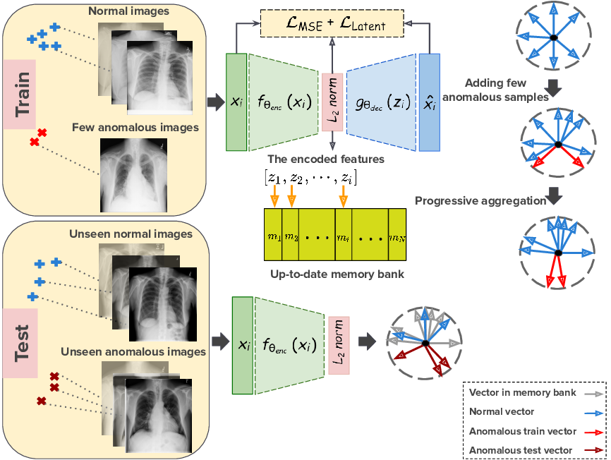 Figure 1 for Anomaly Detection on X-Rays Using Self-Supervised Aggregation Learning
