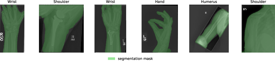 Figure 3 for Anomaly Detection on X-Rays Using Self-Supervised Aggregation Learning