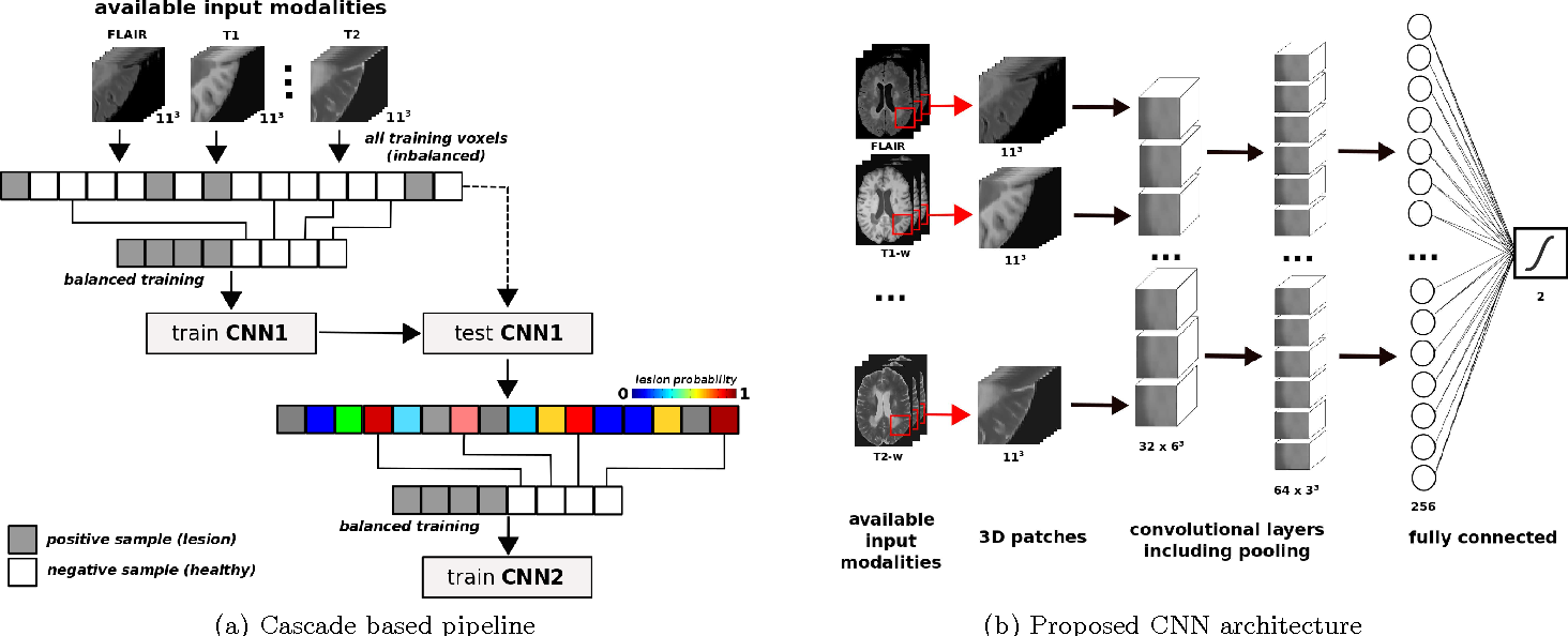 Figure 1 for Improving automated multiple sclerosis lesion segmentation with a cascaded 3D convolutional neural network approach