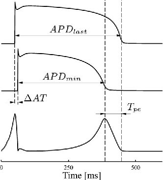 Fig. 2. Representation of the Tpe interval in terms of APDs and delay of activation times (ΔAT).