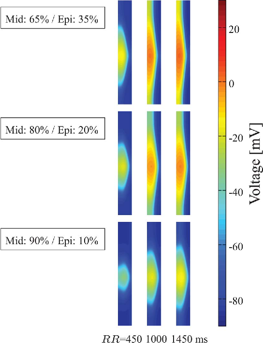 Fig. 8. Isochronic voltage representation at T -wave peak time instant using three different cell type distributions (mid/epi) and pacing RR intervals of 450, 1000, and 1450 ms.