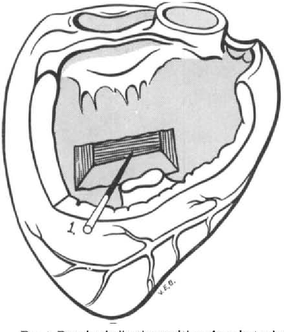 Activation of the interventricular septum. - Semantic Scholar